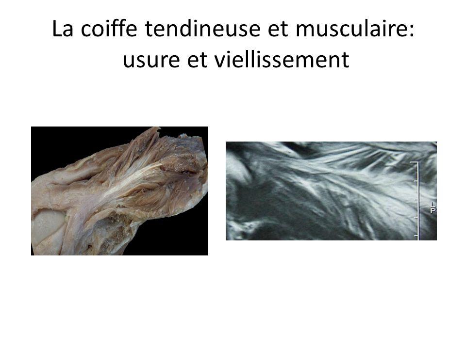 RUPTURE du SUPRA- EPINEUX La coiffe tendineuse et musculaire: usure et viellissement