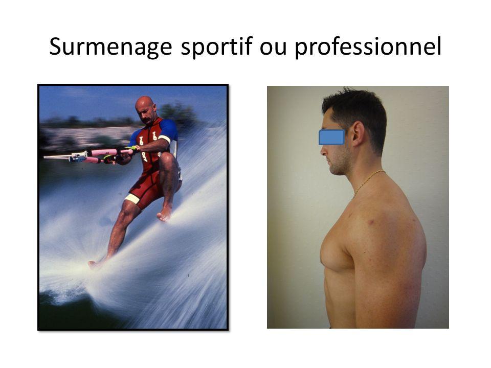 Surmenage sportif ou professionnel