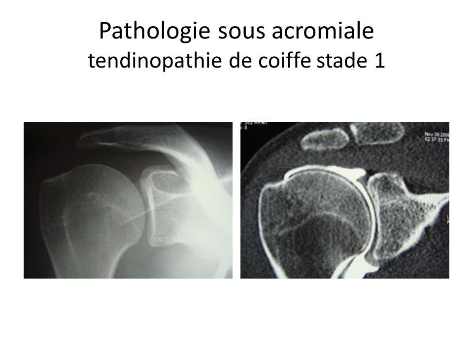 Pathologie sous acromiale tendinopathie calcifiante A B C