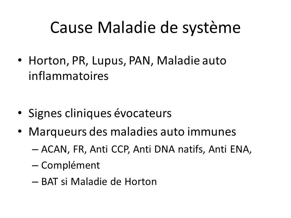 Cause Maladie de système Horton, PR, Lupus, PAN, Maladie auto inflammatoires Signes cliniques évocateurs Marqueurs des maladies auto immunes – ACAN, F