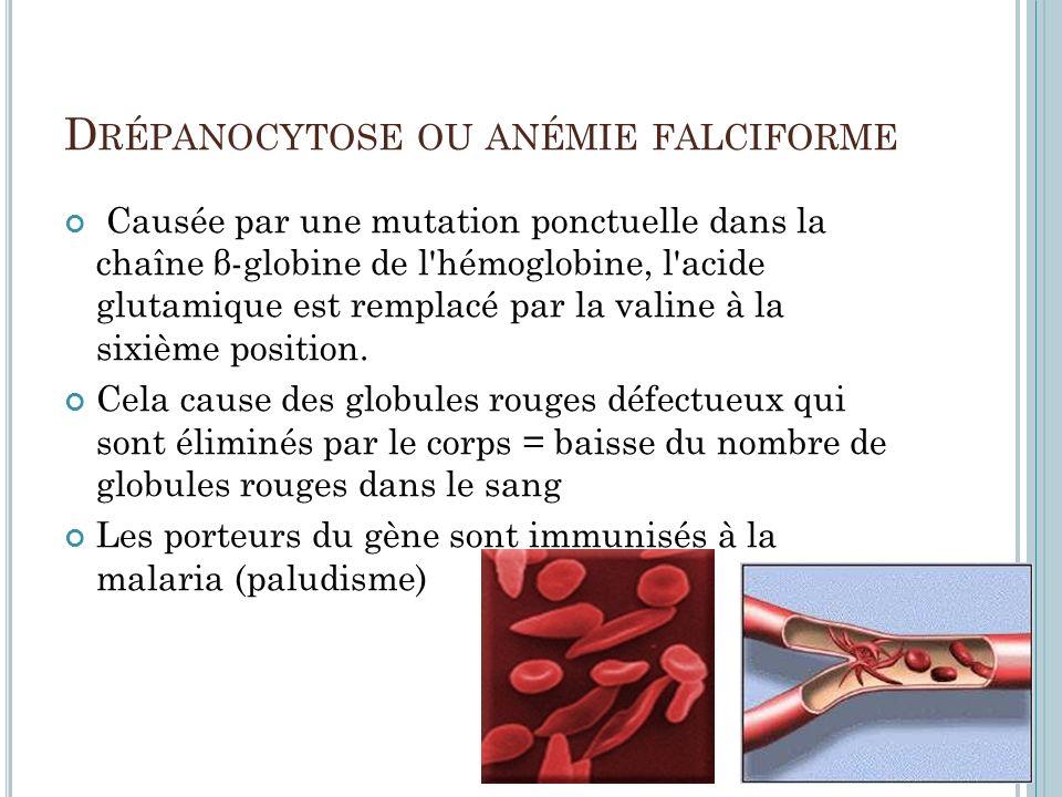 D RÉPANOCYTOSE OU ANÉMIE FALCIFORME Causée par une mutation ponctuelle dans la chaîne β-globine de l'hémoglobine, l'acide glutamique est remplacé par