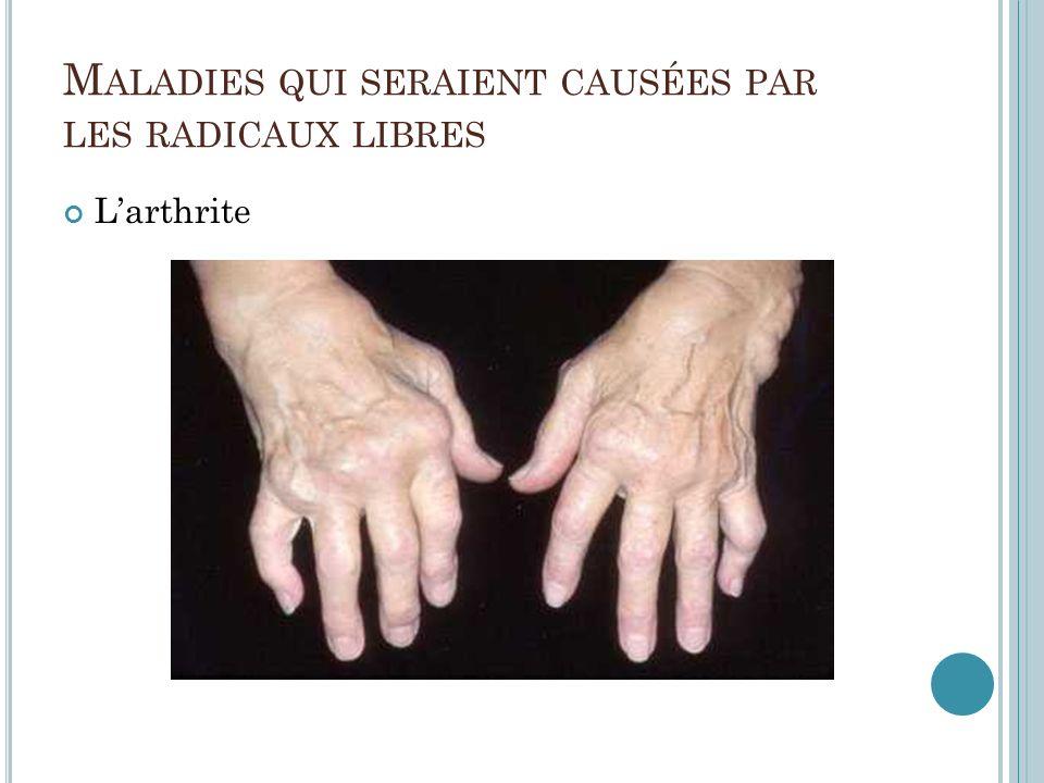 M ALADIES QUI SERAIENT CAUSÉES PAR LES RADICAUX LIBRES Larthrite