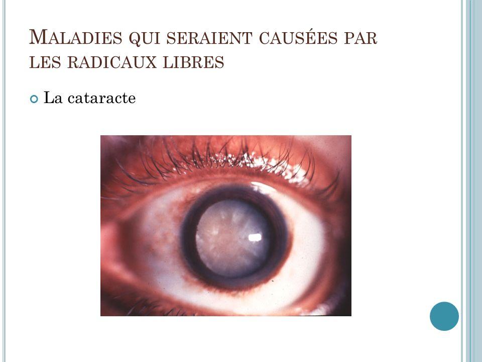 M ALADIES QUI SERAIENT CAUSÉES PAR LES RADICAUX LIBRES La cataracte