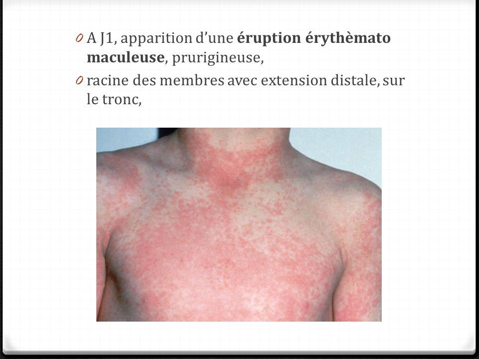 Activation lymphocytaire par surperantigène Sève et al. La revue de médecine interne 2011