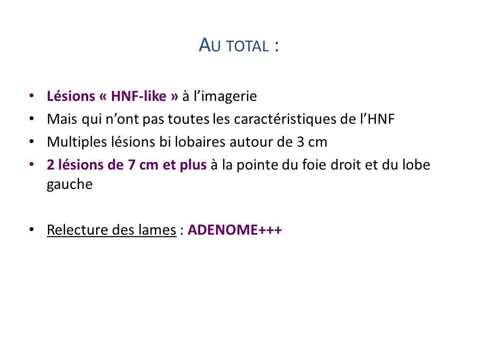 A U TOTAL : Lésions « HNF-like » à limagerie Mais qui nont pas toutes les caractéristiques de lHNF Multiples lésions bi lobaires autour de 3 cm 2 lési