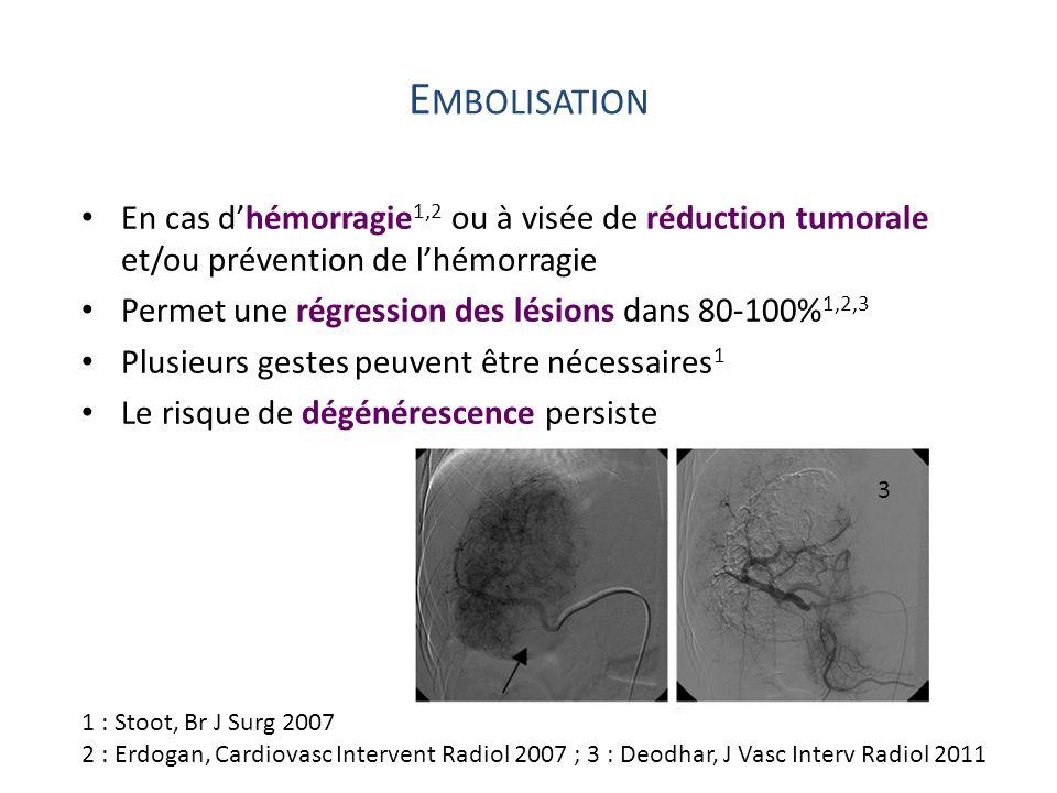 E MBOLISATION En cas dhémorragie 1,2 ou à visée de réduction tumorale et/ou prévention de lhémorragie Permet une régression des lésions dans 80-100% 1
