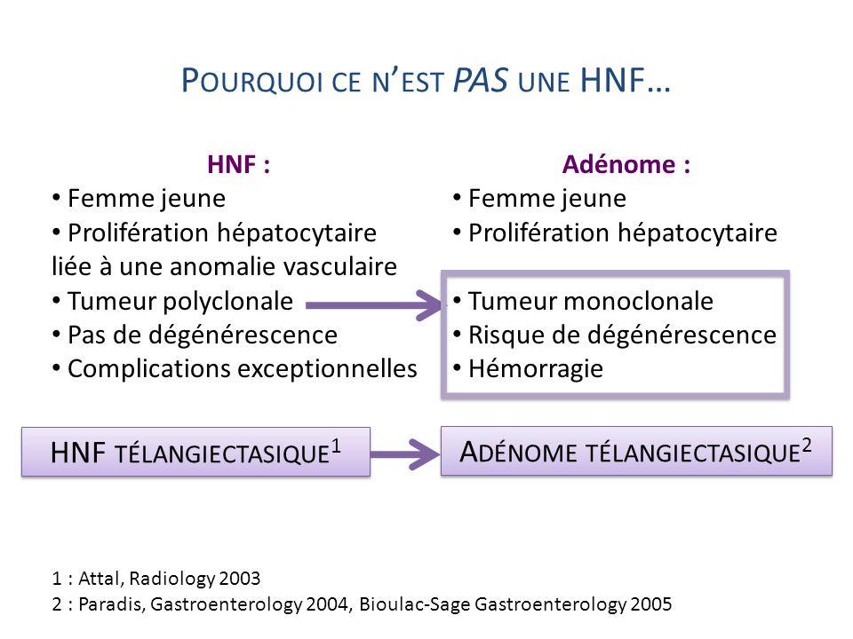 P OURQUOI CE N EST PAS UNE HNF… HNF : Femme jeune Prolifération hépatocytaire liée à une anomalie vasculaire Tumeur polyclonale Pas de dégénérescence