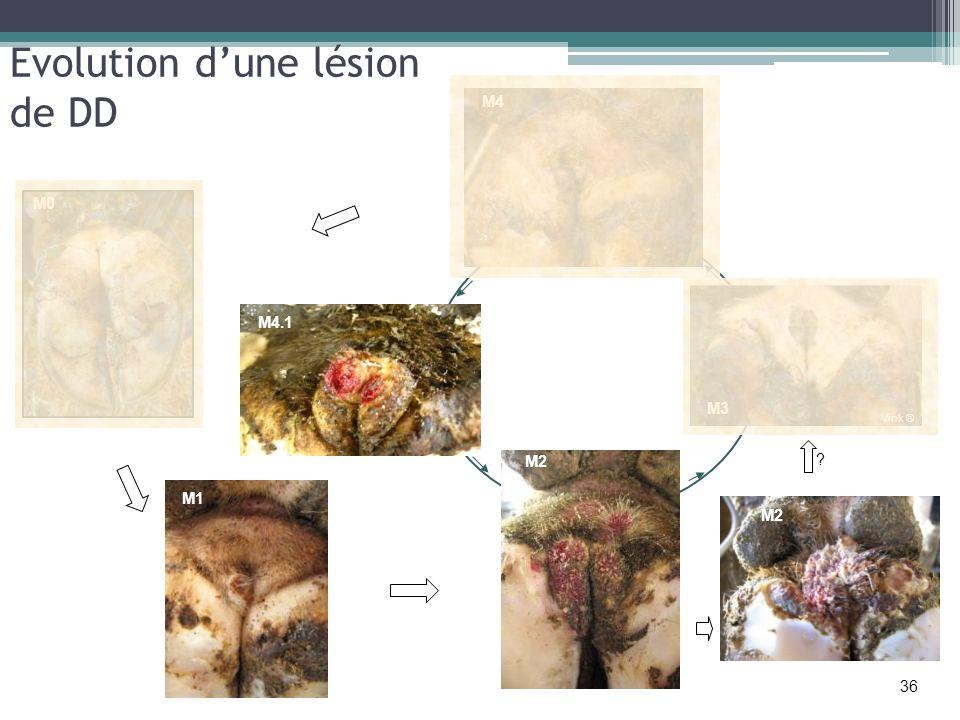 Evolution dune lésion de DD M0 M4 M4.1 M4 M2 ? M1 36 M3 Vink ®