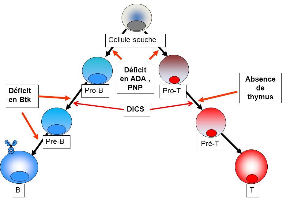 Déficit en ADA, PNP Pro-B Pro-T DICS Absence de thymus Déficit en Btk Pré-B B Pré-T T Cellule souche