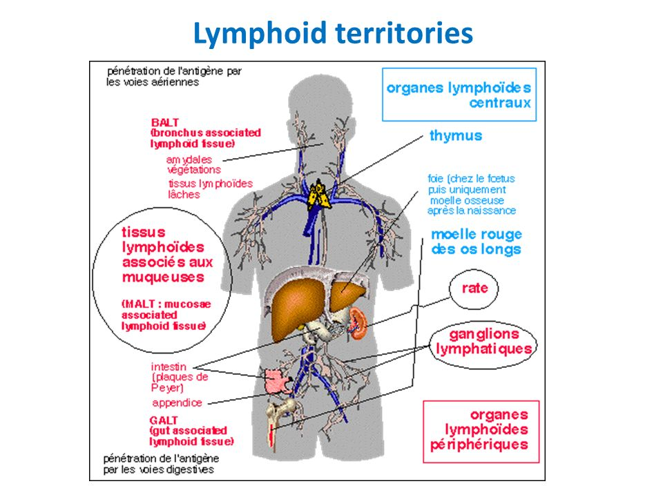 Principle of classification of Lymphoid proliferations B lineage – Issued from immature cells : Precursor Acute lymphoblastic leukemia and Lymphoblastic lymphoma – Issued from matured cells Non Hodgkin lymphoma Hodgkin lymphoma T/NK lineage – Issued from immature cells : Precursor Acute lymphoblastic leukemia and Lymphoblastic lymphoma – Issued from matured cells T Non Hodgkin lymphoma Natural Killer cells proliferations