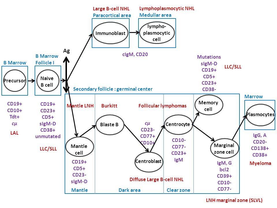 Leucémie lymphoblastique B9836/3 Lymphome lymphoblastique B 9728/3 Leucémie aiguë lymphoblastique T9837/3 Lymphome lymphoblastique T9729/3 Leucémie aiguë lymphoblastique, NOS9835/5 Lymphome lymphoblastique, NOS9727/3 Regroupement confirmé Seuil des blastes utilisé antérieurement non conservé Precursor Lymphoid Neoplasm 9837/3 9836/3 9835/3