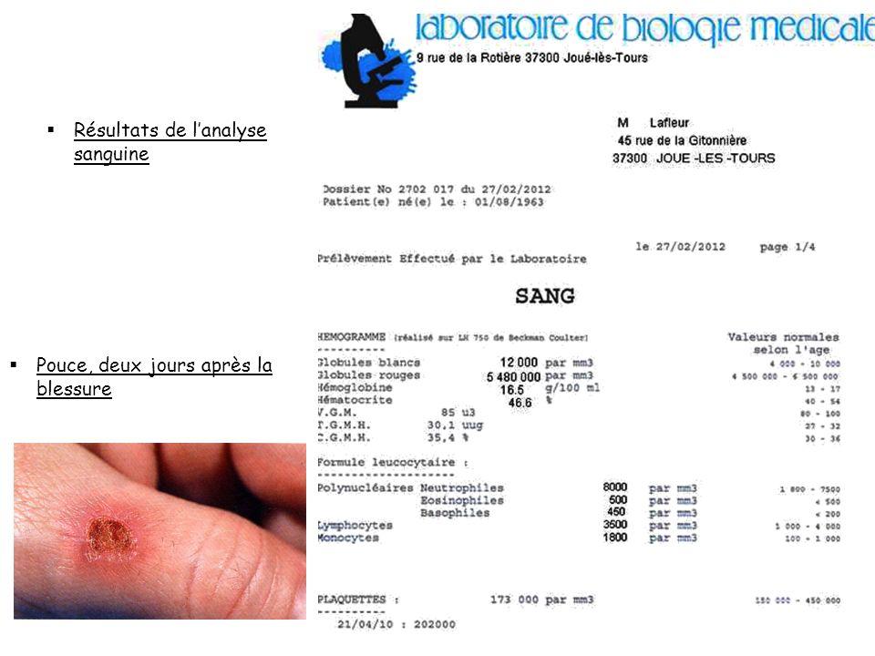 Résultats de lanalyse sanguine Pouce, deux jours après la blessure