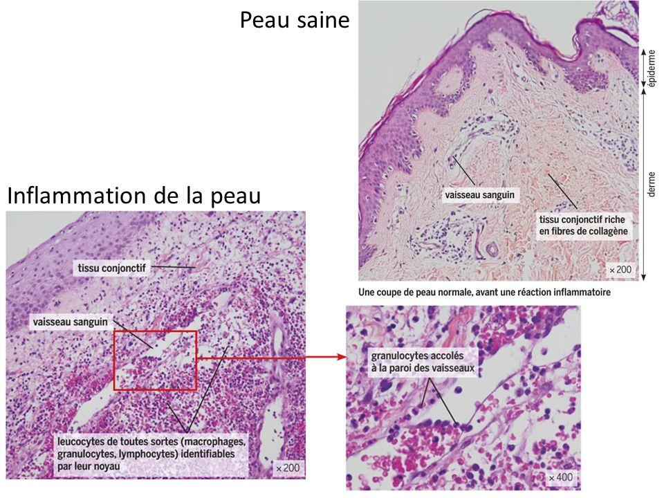 Peau saine Inflammation de la peau