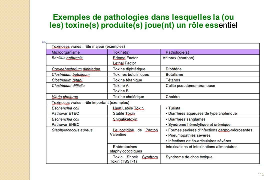 115 Exemples de pathologies dans lesquelles la (ou les) toxine(s) produite(s) joue(nt) un rôle essentiel