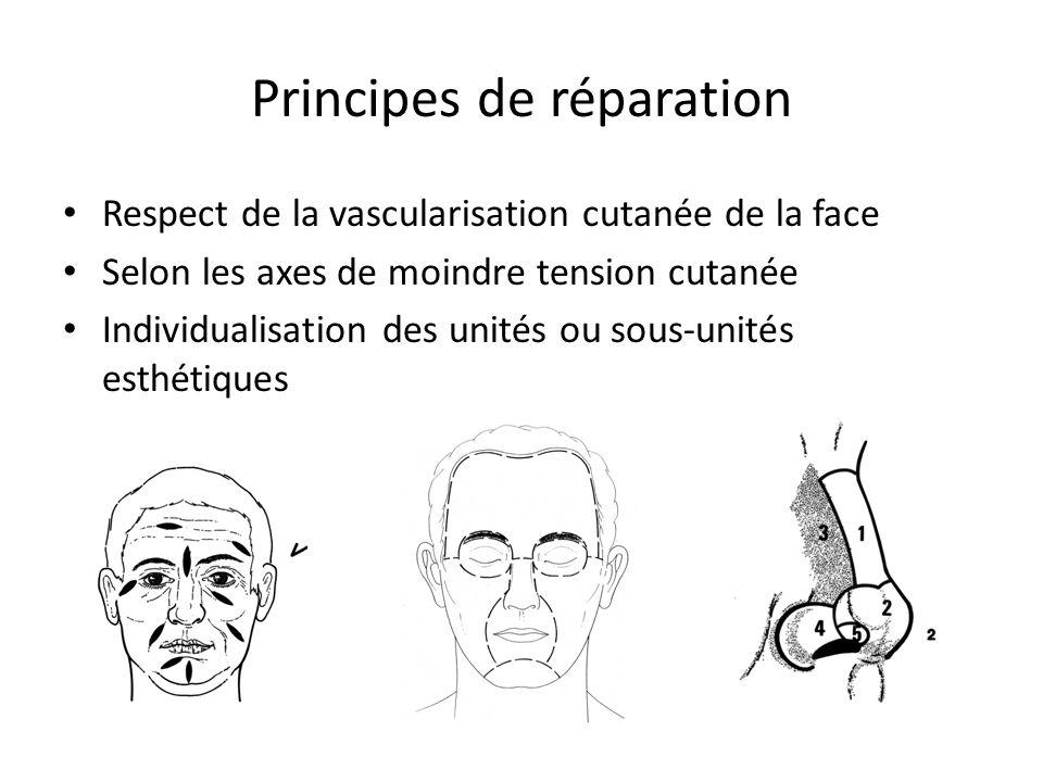Principes de réparation Respect de la vascularisation cutanée de la face Selon les axes de moindre tension cutanée Individualisation des unités ou sous-unités esthétiques