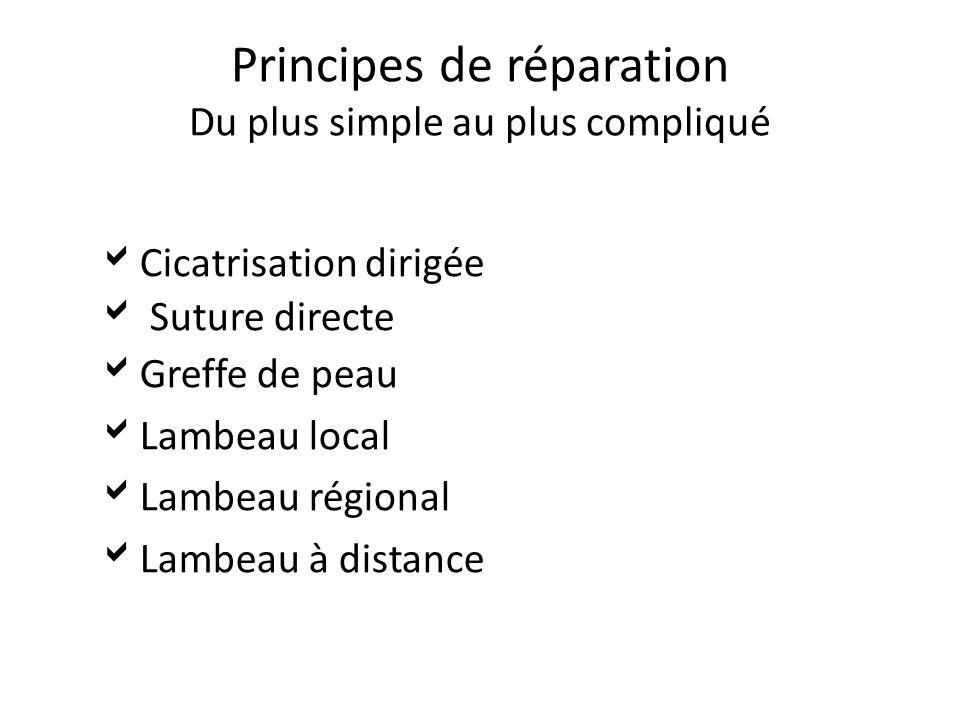 Principes de réparation Du plus simple au plus compliqué Cicatrisation dirigée Suture directe Greffe de peau Lambeau local Lambeau régional Lambeau à distance