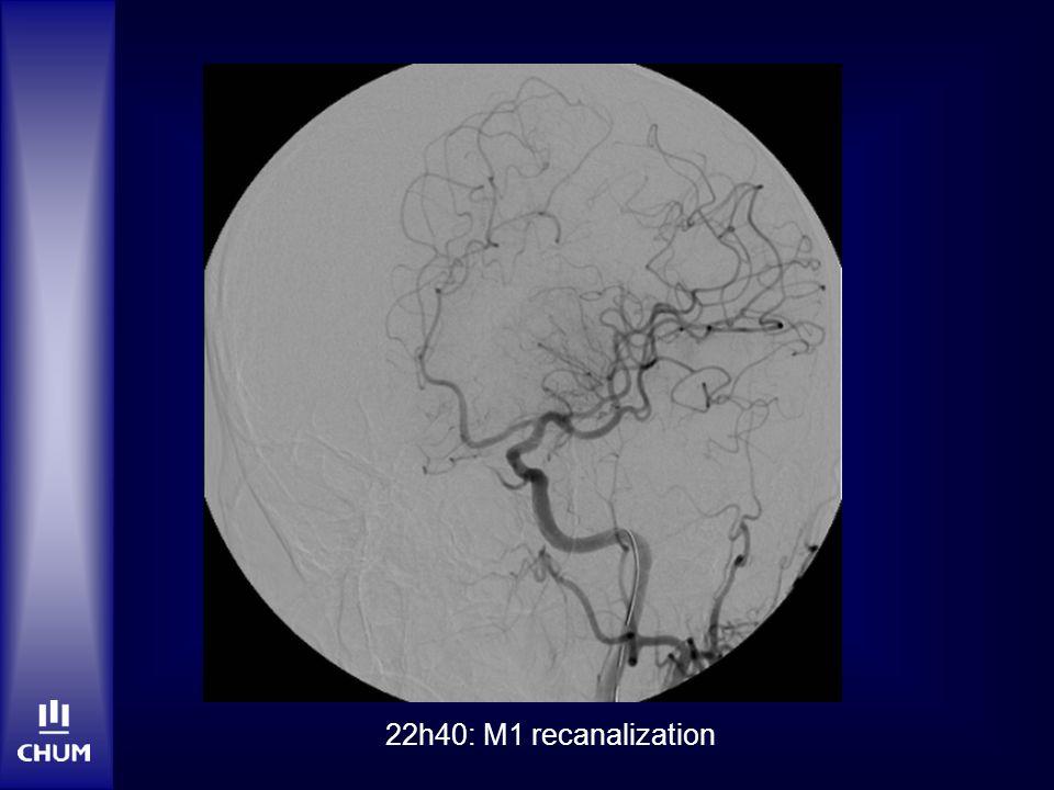 22h40: M1 recanalization