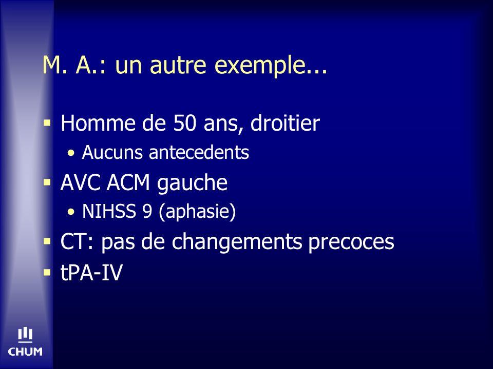 M. A.: un autre exemple... Homme de 50 ans, droitier Aucuns antecedents AVC ACM gauche NIHSS 9 (aphasie) CT: pas de changements precoces tPA-IV