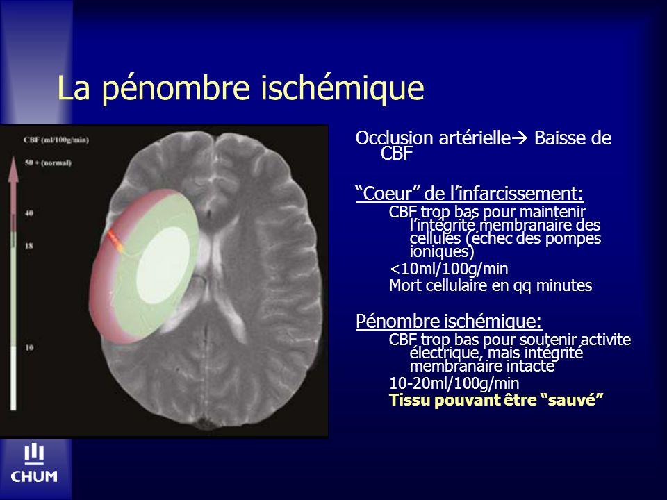 Echec de Tx endovasculaire – angioplastie, MERCI, tPA-IA