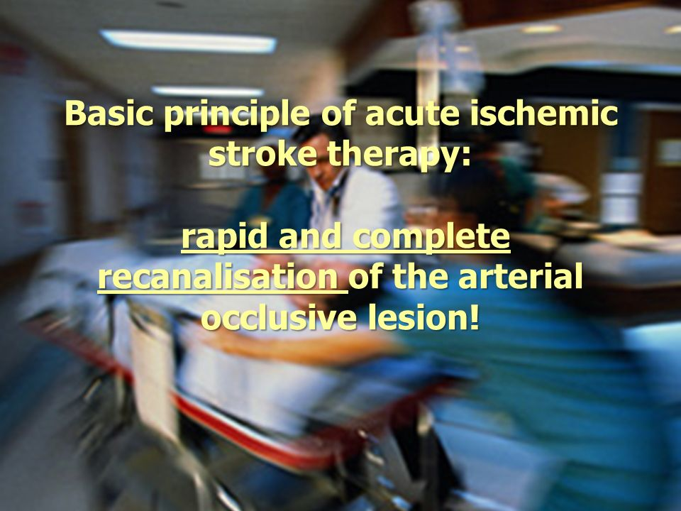 Basic principle of acute ischemic stroke therapy: rapid and complete recanalisation of the arterial occlusive lesion!