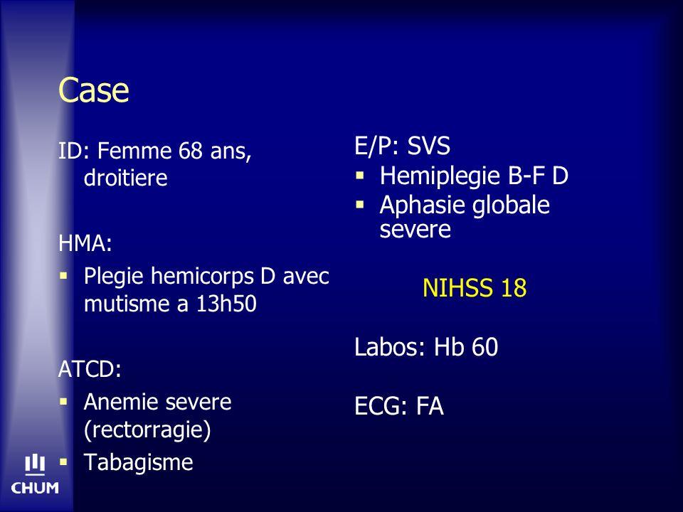 Case ID: Femme 68 ans, droitiere HMA: Plegie hemicorps D avec mutisme a 13h50 ATCD: Anemie severe (rectorragie) Tabagisme E/P: SVS Hemiplegie B-F D Ap