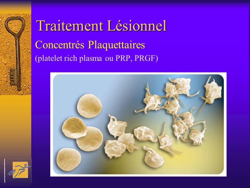 Traitement Lésionnel Concentrés Plaquettaires (platelet rich plasma ou PRP, PRGF)