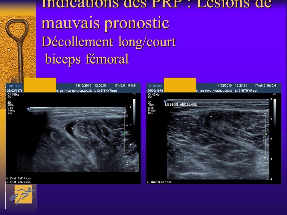 Indications des PRP : Lésions de mauvais pronostic Décollement long/court biceps fémoral