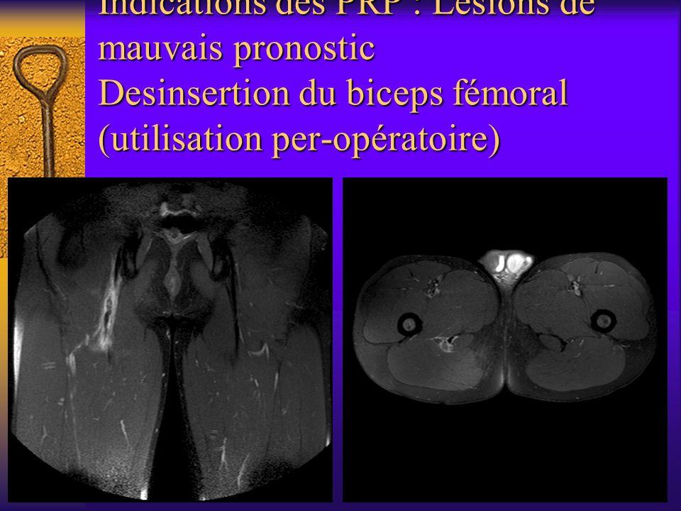 Indications des PRP : Lésions de mauvais pronostic Desinsertion du biceps fémoral (utilisation per-opératoire)
