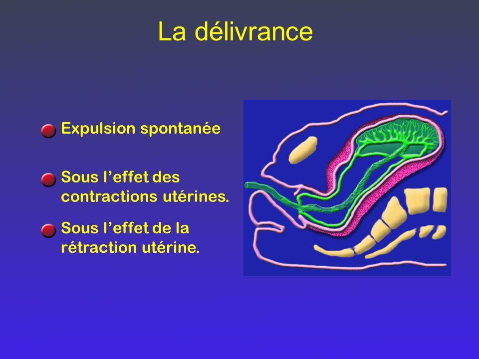 La délivrance Expulsion spontanée Sous leffet des contractions utérines. Sous leffet de la rétraction utérine.