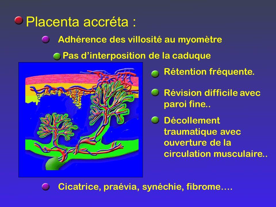 Placenta accréta : Adhérence des villosité au myomètre Pas dinterposition de la caduque Rétention fréquente. Révision difficile avec paroi fine.. Déco