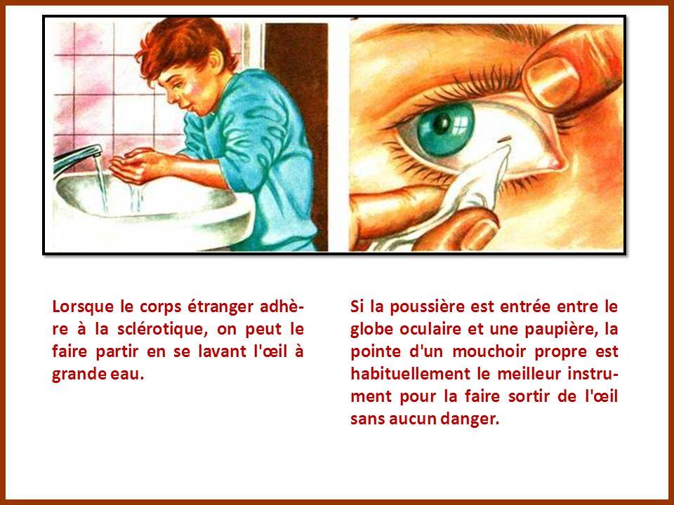 Une poussière dans l'œil, cela arrive fréquemment, et, habituellement, cela ne pose pas de problème. En cas de vent très fort, par exemple, des poussi