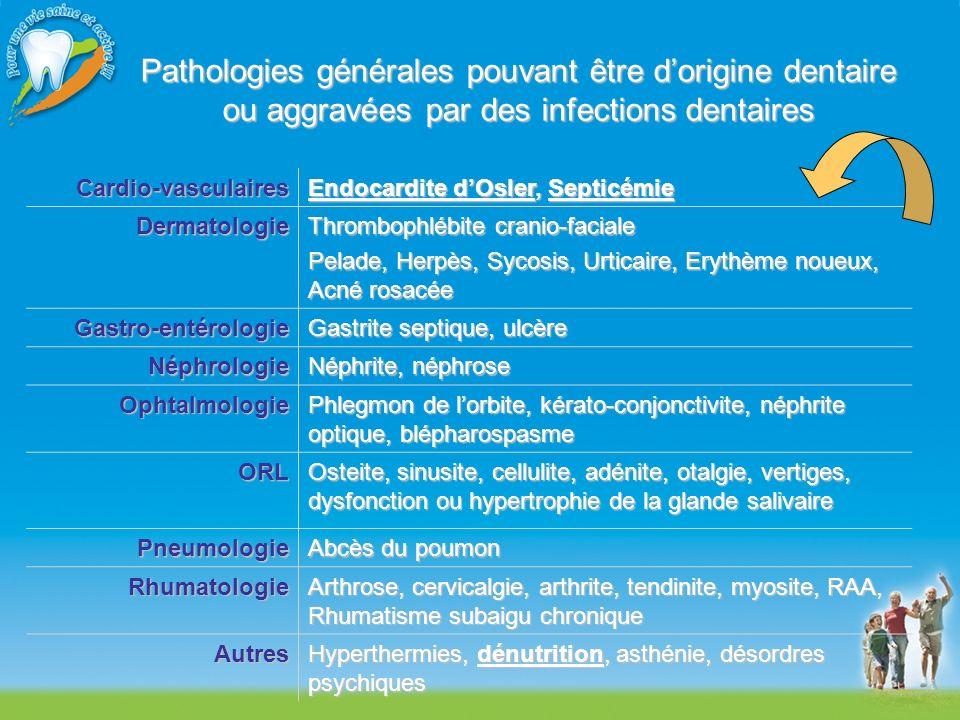 Pathologies générales pouvant être dorigine dentaire ou aggravées par des infections dentaires Cardio-vasculaires Endocardite dOsler, Septicémie Derma