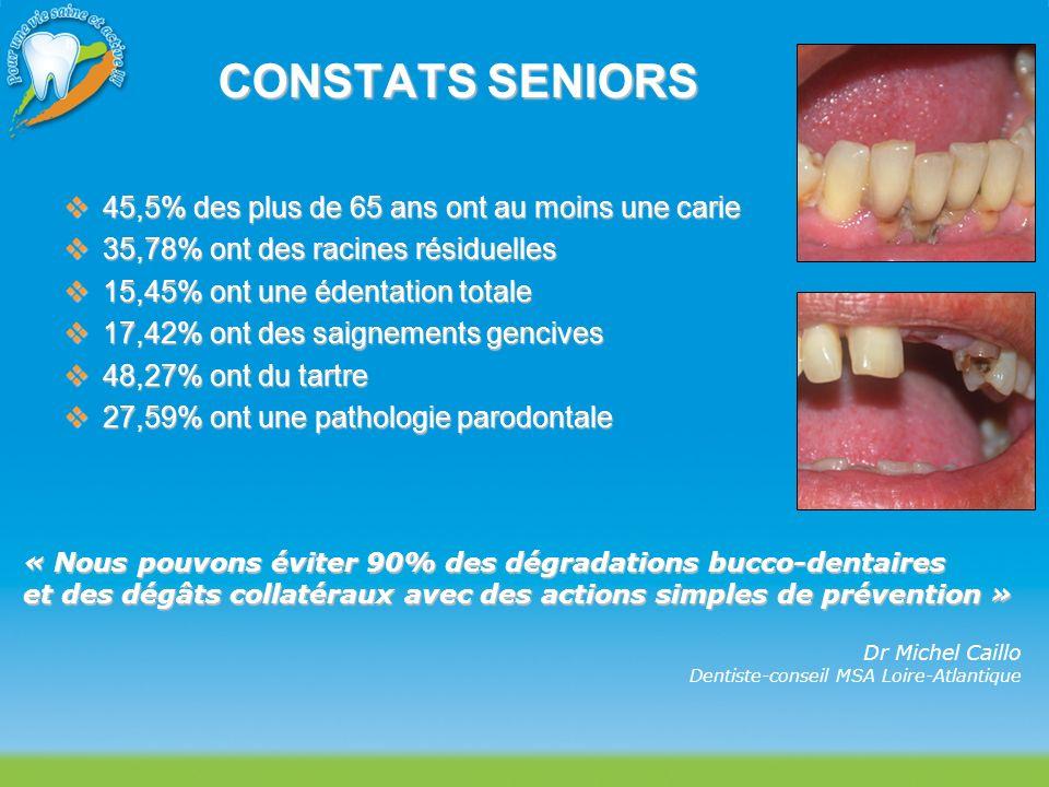 CONSTATS SENIORS 45,5% des plus de 65 ans ont au moins une carie 45,5% des plus de 65 ans ont au moins une carie 35,78% ont des racines résiduelles 35