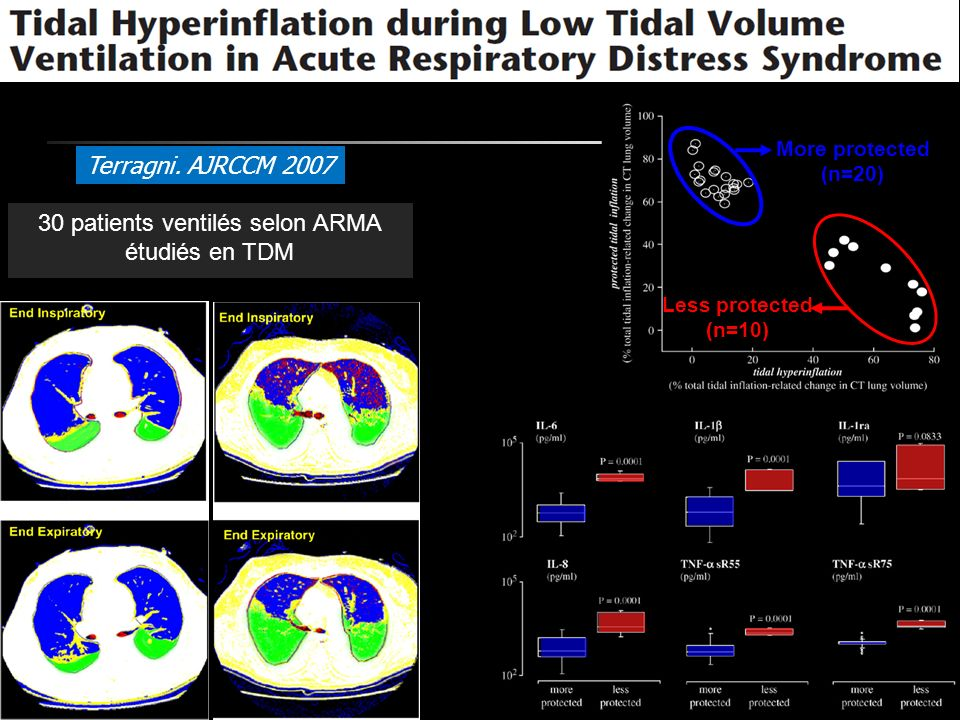 Terragni. AJRCCM 2007 30 patients ventilés selon ARMA étudiés en TDM More protected (n=20) Less protected (n=10)