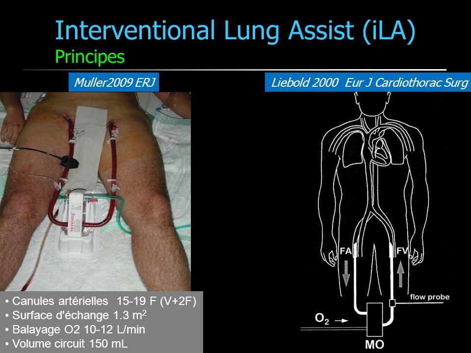 Interventional Lung Assist (iLA) Principes Muller2009 ERJLiebold 2000 Eur J Cardiothorac Surg Canules artérielles 15-19 F (V+2F) Surface d'échange 1.3
