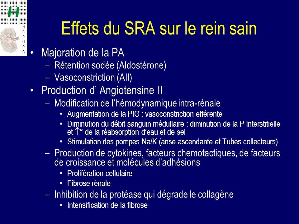 NEPHRONEPHRO Effets du SRA sur le rein sain Majoration de la PA –Rétention sodée (Aldostérone) –Vasoconstriction (AII) Production d Angiotensine II –M