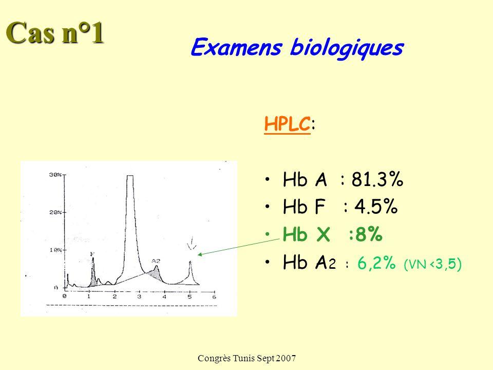 Congrès Tunis Sept 2007 HPLC: Hb A : 81.3% Hb F : 4.5% Hb X :8% Hb A 2 : 6,2% (VN <3,5) Examens biologiques Cas n°1
