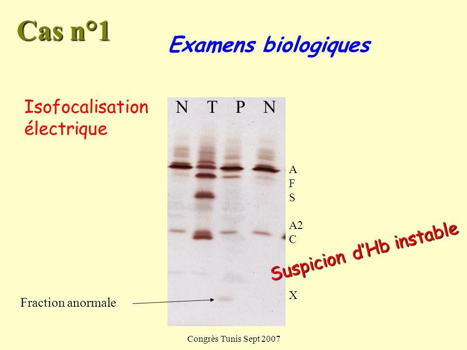 Congrès Tunis Sept 2007 Examens biologiques (Avant transfusion) Corps de Heinz positifs (80%) Cas n°1