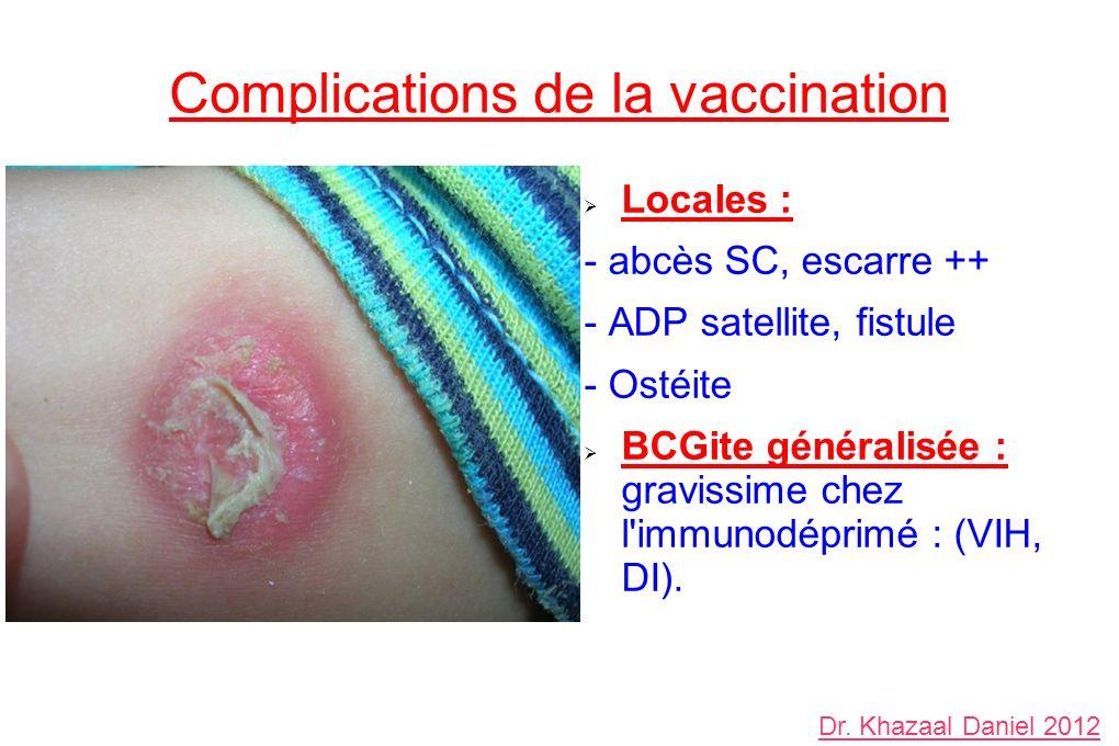 Complications de la vaccination Locales : - abcès SC, escarre ++ - ADP satellite, fistule - Ostéite BCGite généralisée : gravissime chez l immunodéprimé : (VIH, DI).