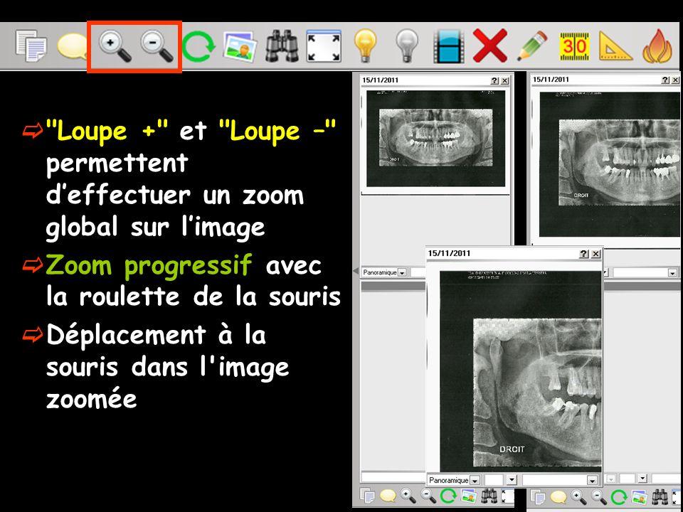 Le zoom Avoir quelque chose à agrandir ou à diminuer La taille de l image réelle en pixels doit être supérieure à celle du cadre dans lequel elle s affiche.