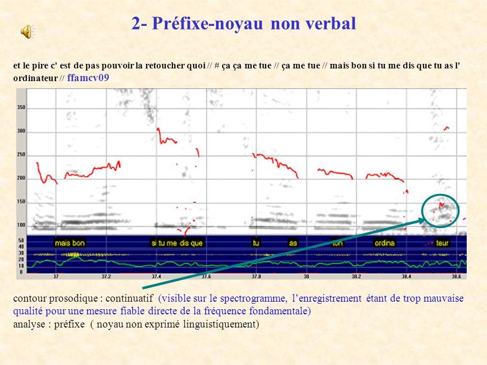1- Contour préfixe-noyau canonique quand je vois comment ils sont / là / maintenant / ( et ) ben # je me dis que là-haut &euh # Roland et Dominique /
