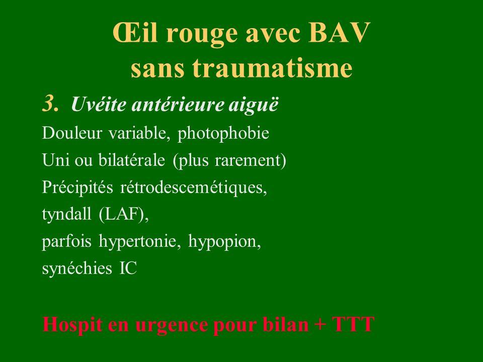 Œil rouge avec BAV sans traumatisme 3. Uvéite antérieure aiguë Douleur variable, photophobie Uni ou bilatérale (plus rarement) Précipités rétrodescemé