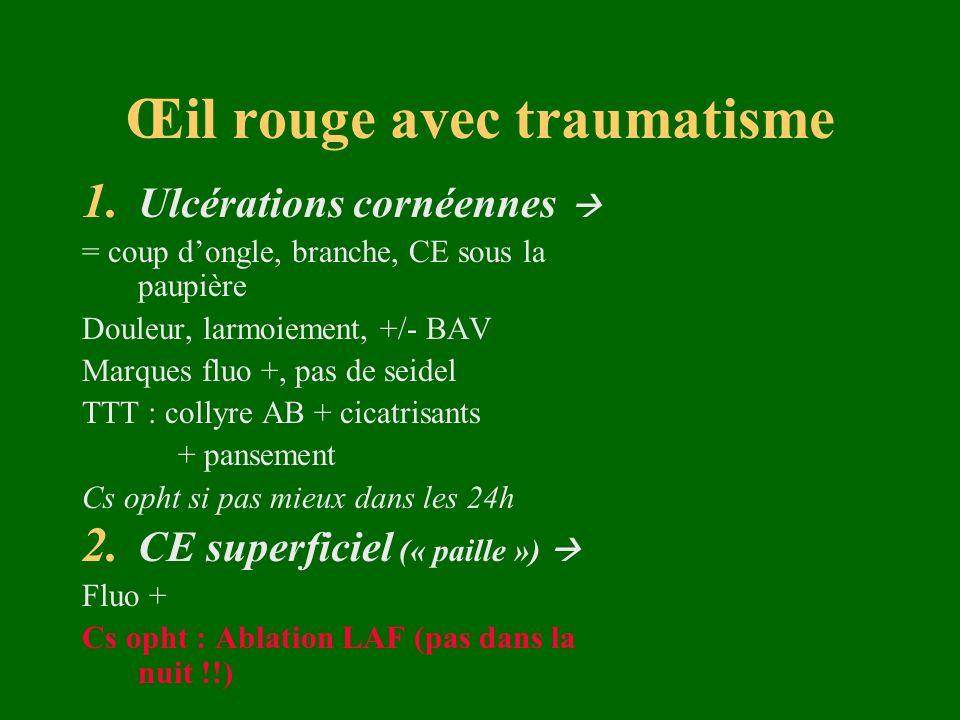 Œil rouge avec traumatisme 1. Ulcérations cornéennes = coup dongle, branche, CE sous la paupière Douleur, larmoiement, +/- BAV Marques fluo +, pas de