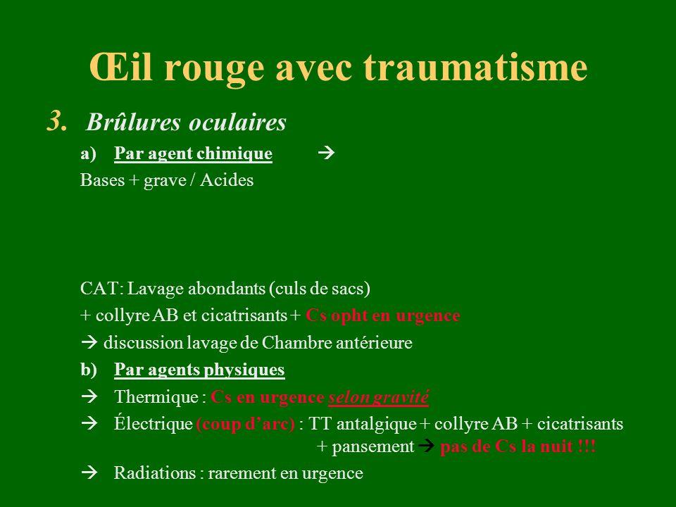 Œil rouge avec traumatisme 3. Brûlures oculaires a)Par agent chimique Bases + grave / Acides CAT: Lavage abondants (culs de sacs) + collyre AB et cica