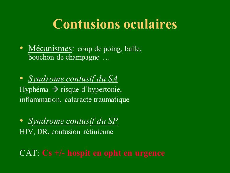Contusions oculaires Mécanismes: coup de poing, balle, bouchon de champagne … Syndrome contusif du SA Hyphéma risque dhypertonie, inflammation, catara