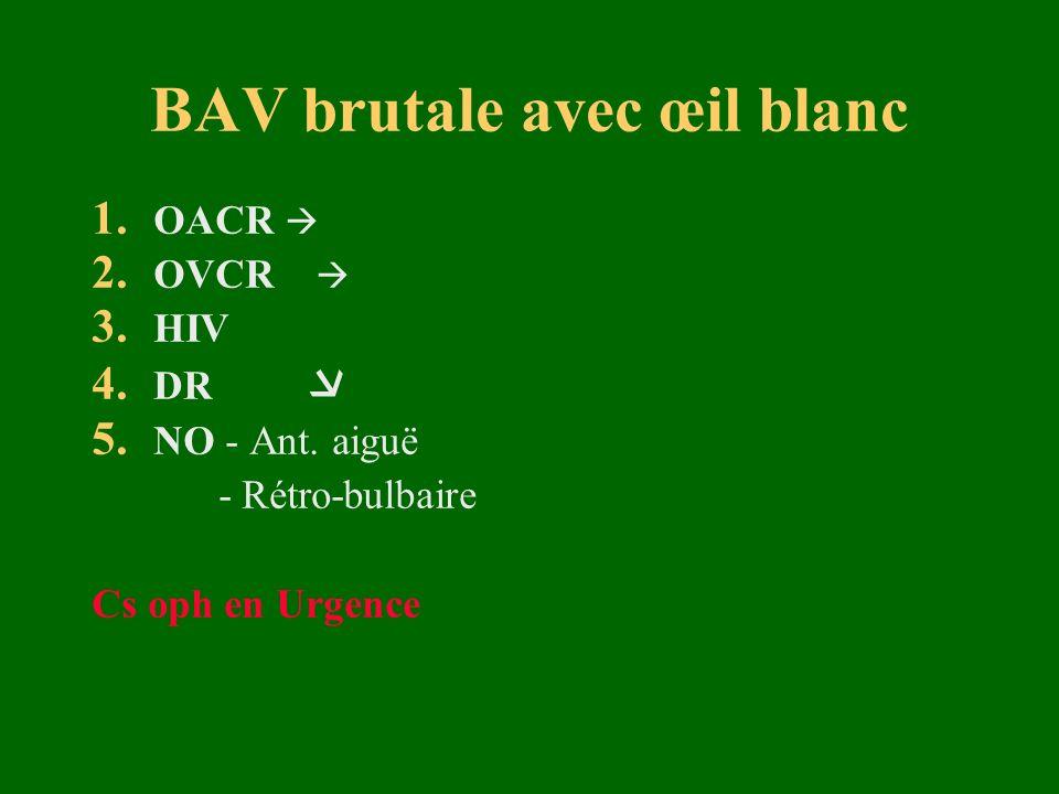 BAV brutale avec œil blanc 1. OACR 2. OVCR 3. HIV 4. DR 5. NO - Ant. aiguë - Rétro-bulbaire Cs oph en Urgence
