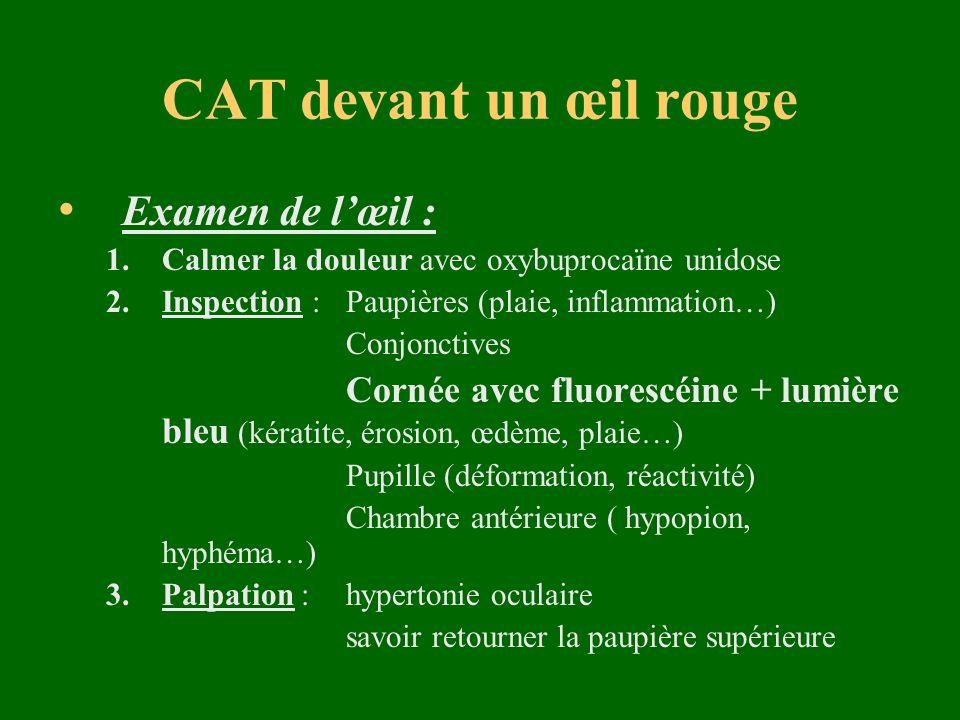 CAT devant un œil rouge Examen de lœil : 1.Calmer la douleur avec oxybuprocaïne unidose 2.Inspection :Paupières (plaie, inflammation…) Conjonctives Co