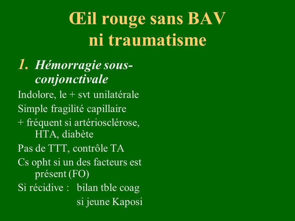 Œil rouge sans BAV ni traumatisme 1. Hémorragie sous- conjonctivale Indolore, le + svt unilatérale Simple fragilité capillaire + fréquent si artériosc