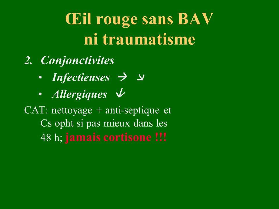 Œil rouge sans BAV ni traumatisme 2. Conjonctivites Infectieuses Allergiques CAT: nettoyage + anti-septiqueet Cs opht si pas mieux dans les 48 h; jama