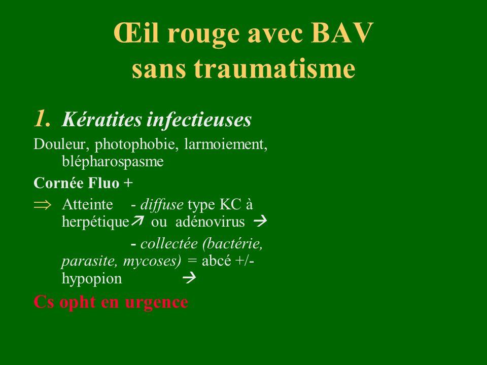 Œil rouge avec BAV sans traumatisme 1. Kératites infectieuses Douleur, photophobie, larmoiement, blépharospasme Cornée Fluo + Atteinte - diffuse type